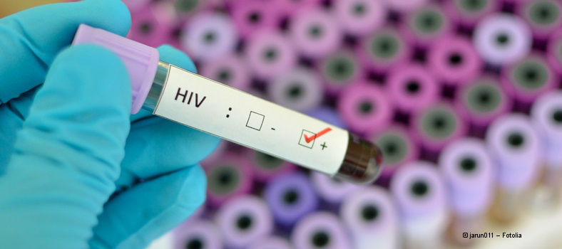 Fotolia_Jarun011_HIV-Diagnose