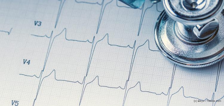 Stethoskop und EKG-Kurve